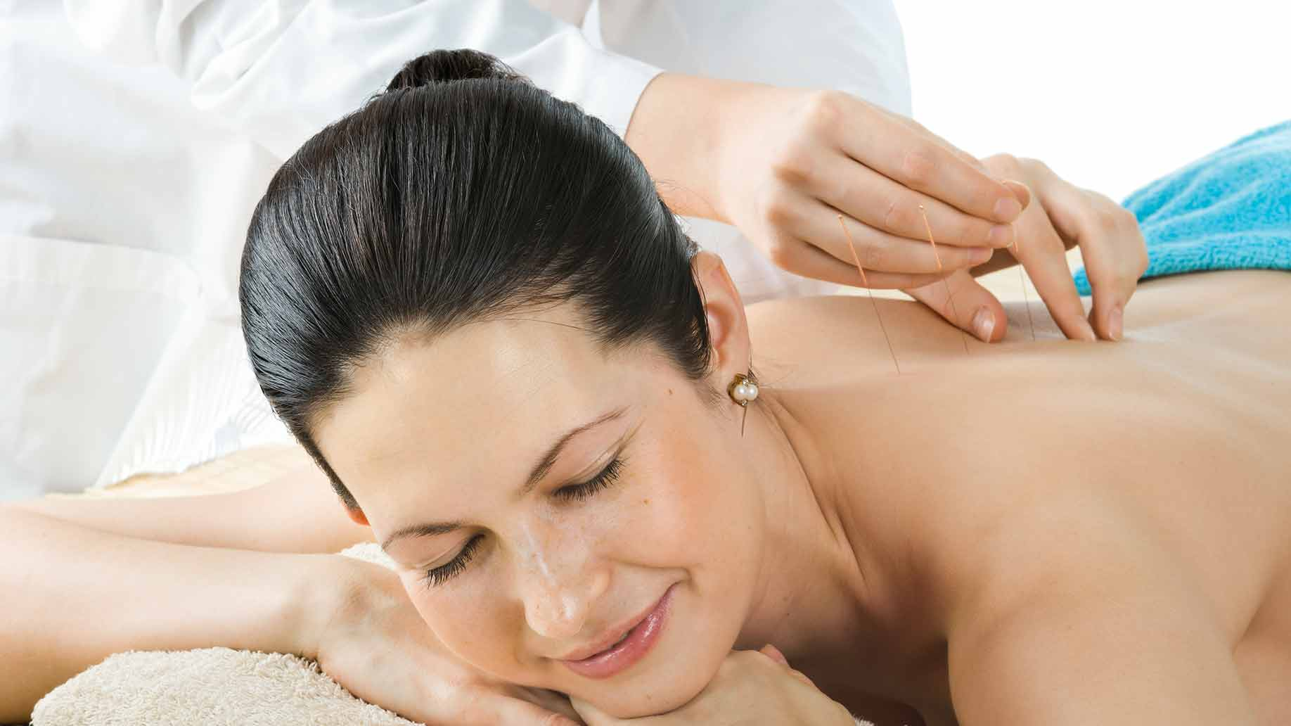 acupuncture with back needles soothing massage therapy