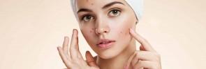 acne natural facial masks diy for problem prone skin