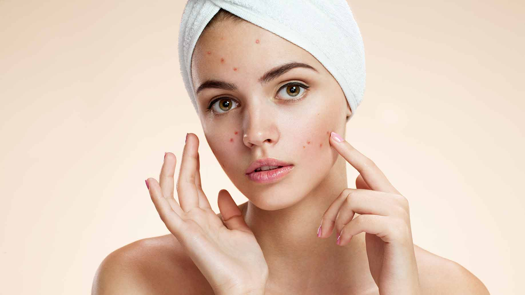 acne natural facial masks diy for problem prone skin