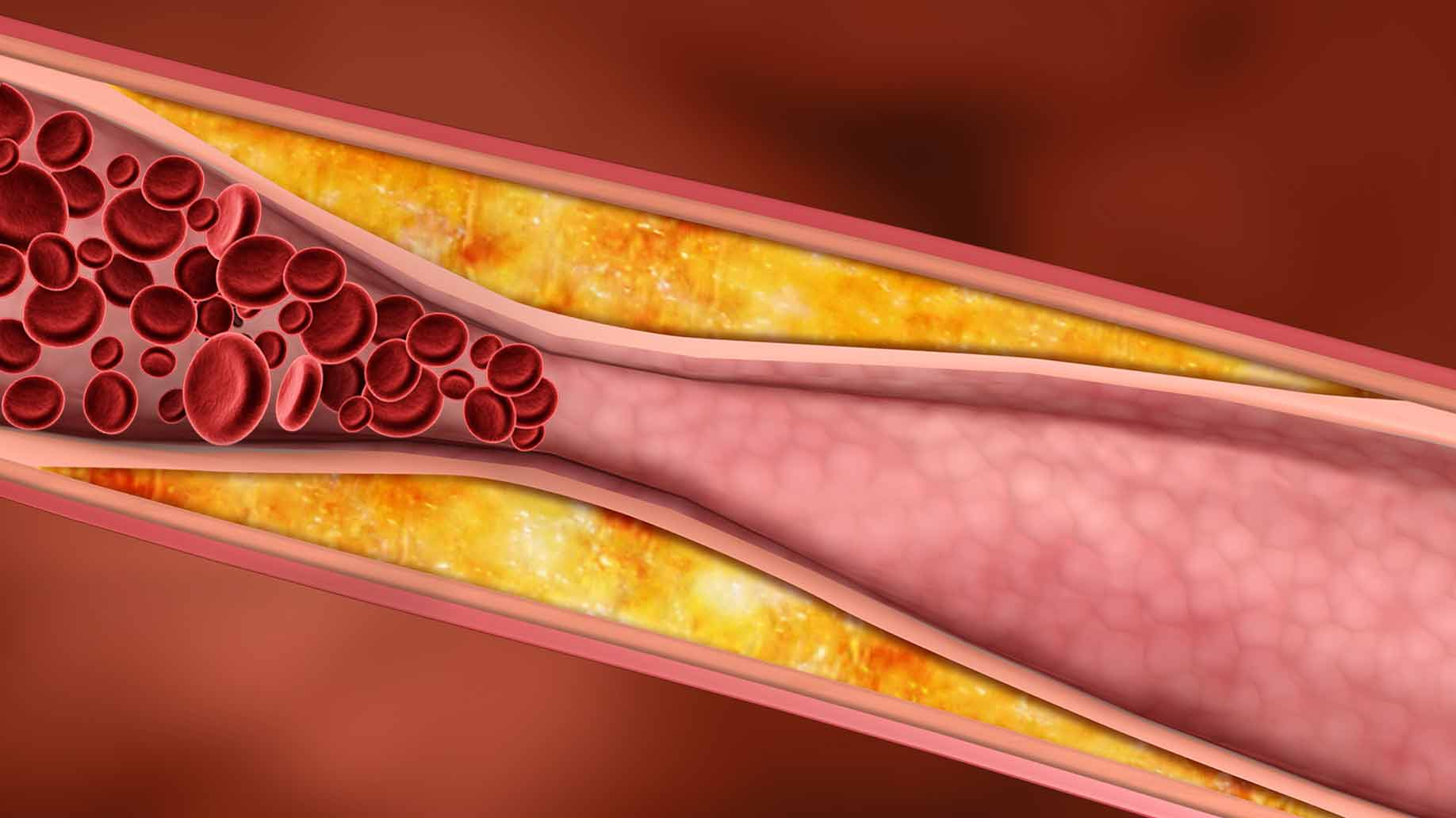 what is high blood pressure hypertension arteries flow natural remedies
