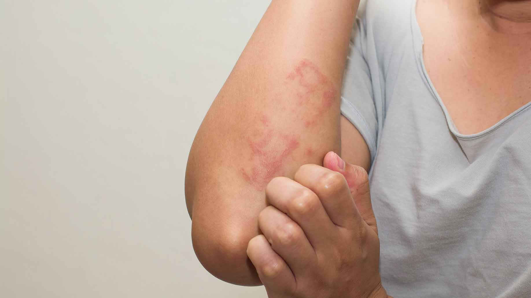 natural benefits of honey raw organic eczema dry skin itchy remedies uses