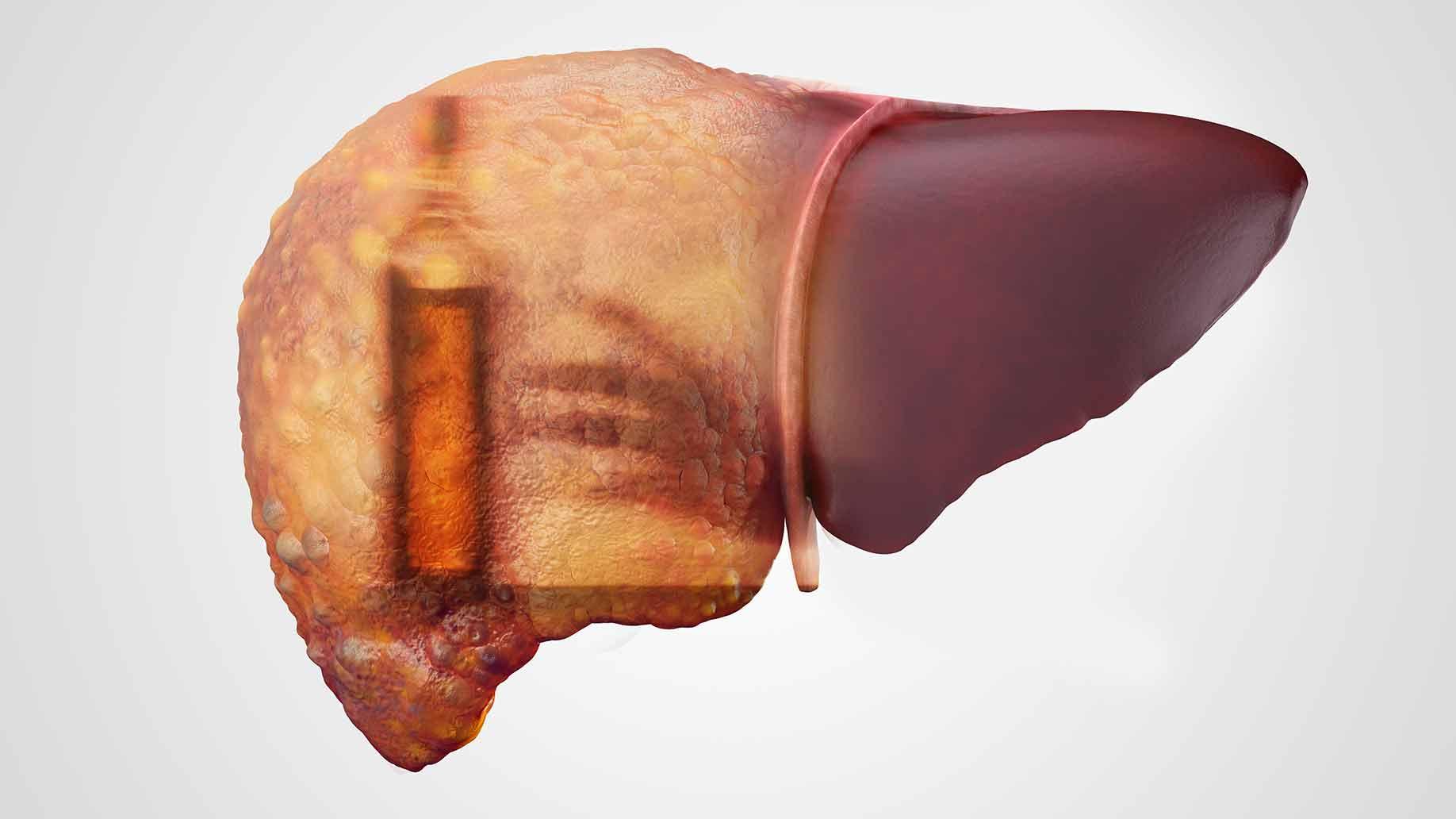 coffee natural benefits cirrhosis alcohol immune hepatitis liver disease health