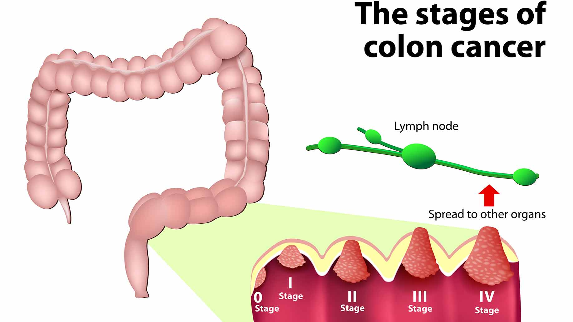 coffee natural benefits colon colorectal cancer tumor health
