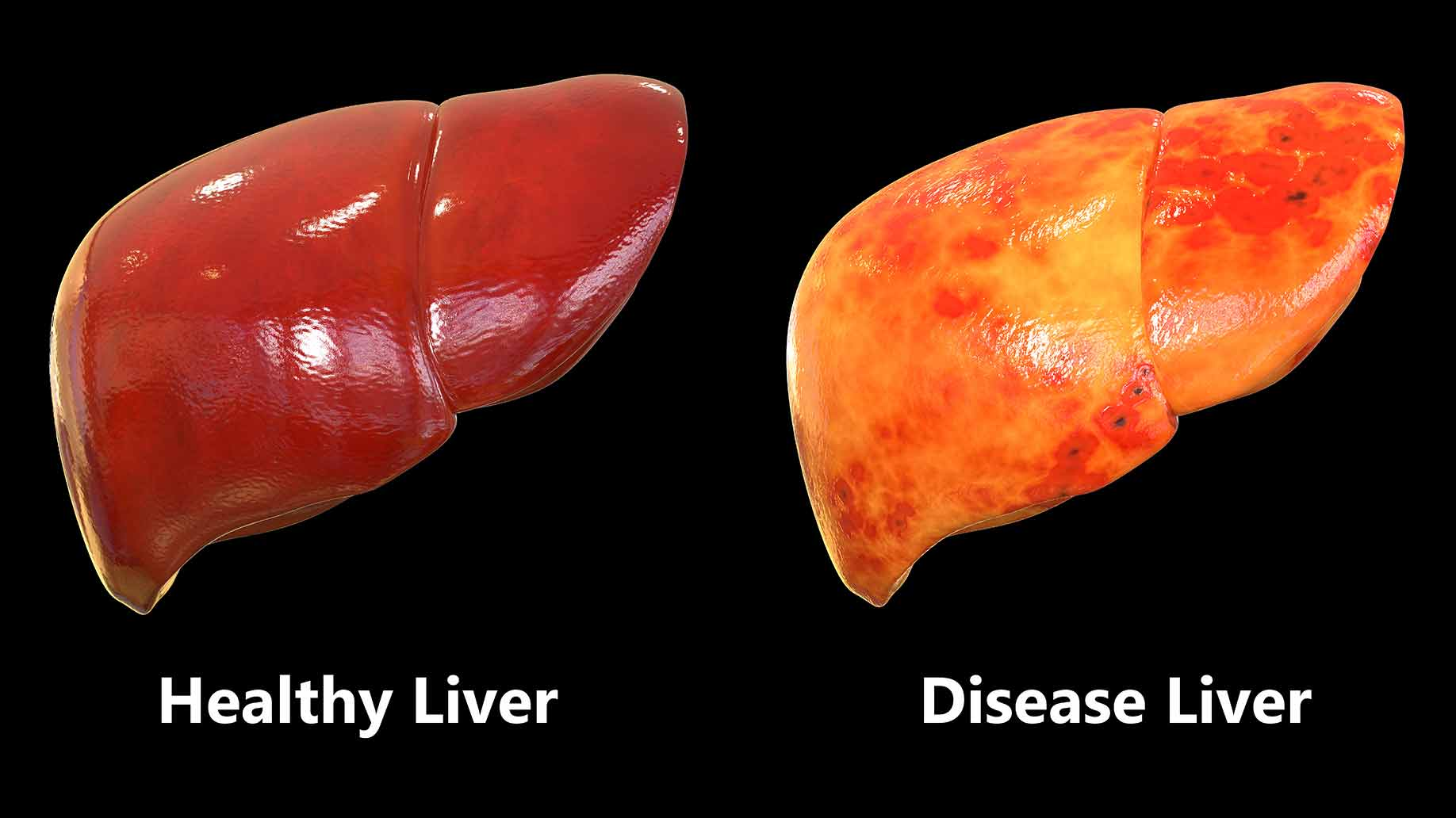 coffee natural benefits fatty liver disease