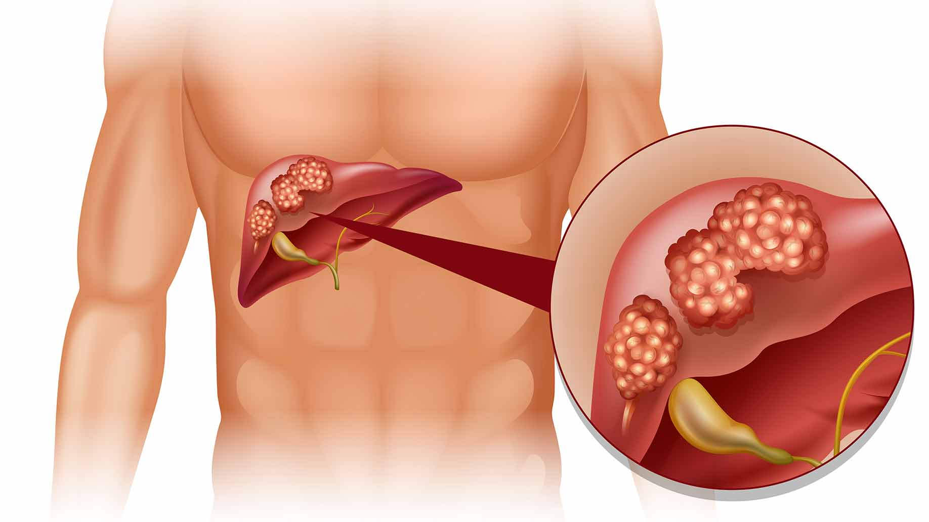 coffee natural benefits liver cancer tumor health