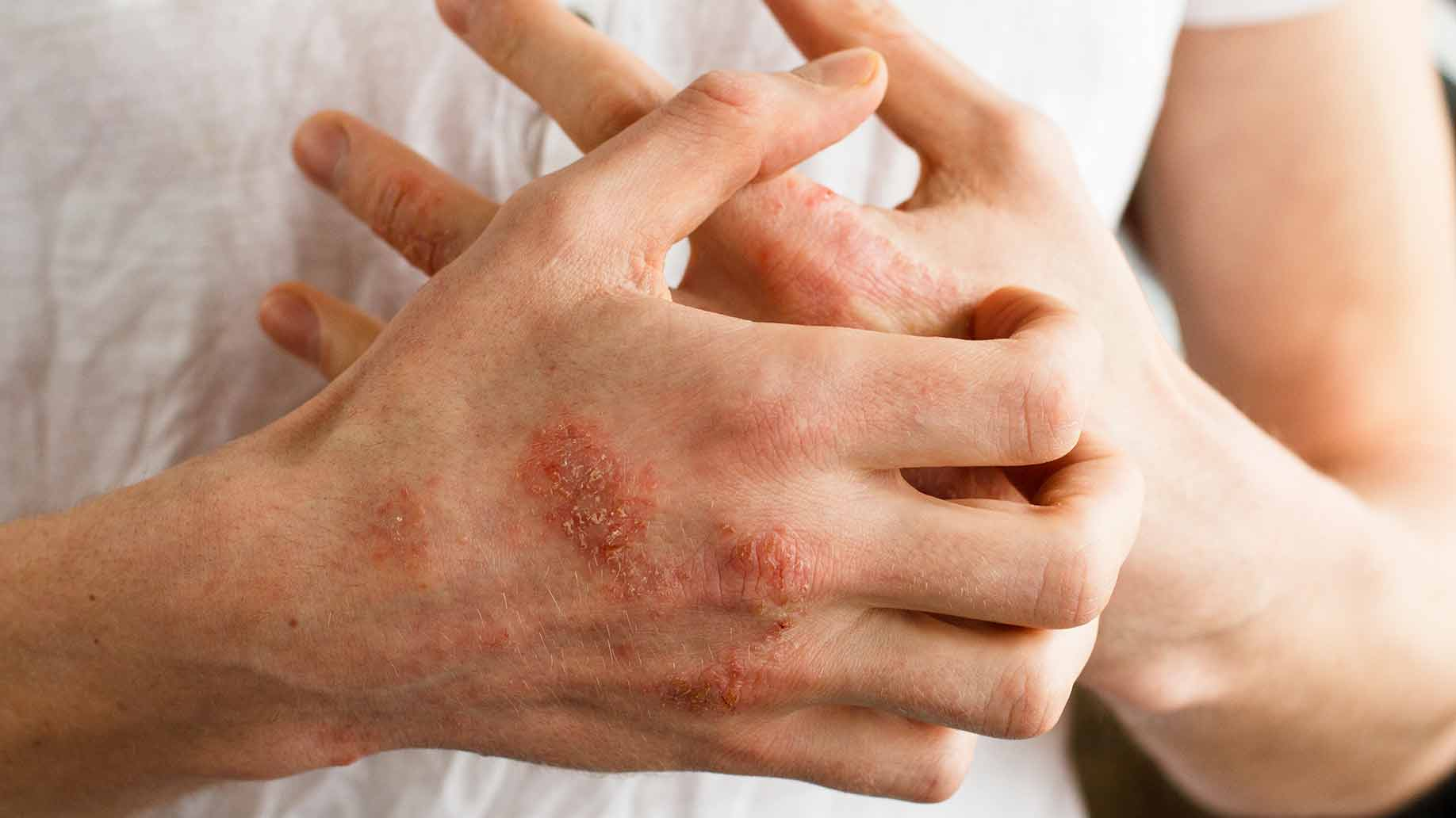 Eczema psoriasis skin disease red itchy patches dry cracked bumps natural remedies