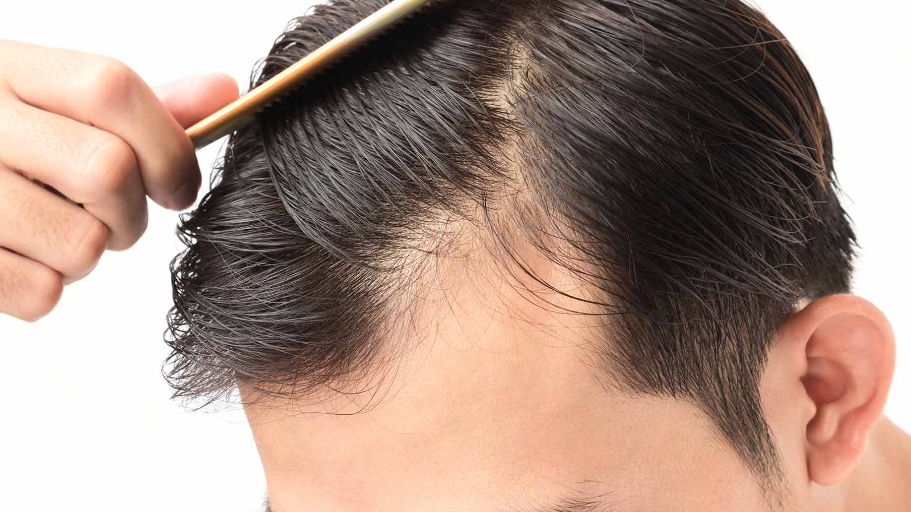 Causes Of Men's Hair Loss