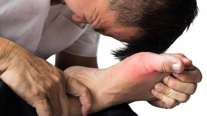 gout pain toe arthritis inflammation natural remedies